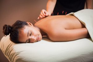 Customer relaxes as she gets acupuncture during a massage session